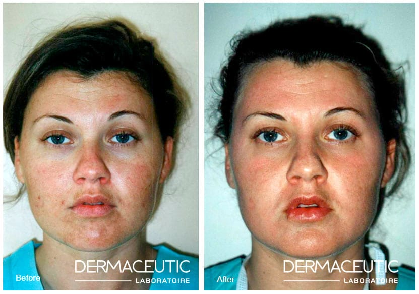Dermaceutic | Cosmo Peel 15% - Before and After