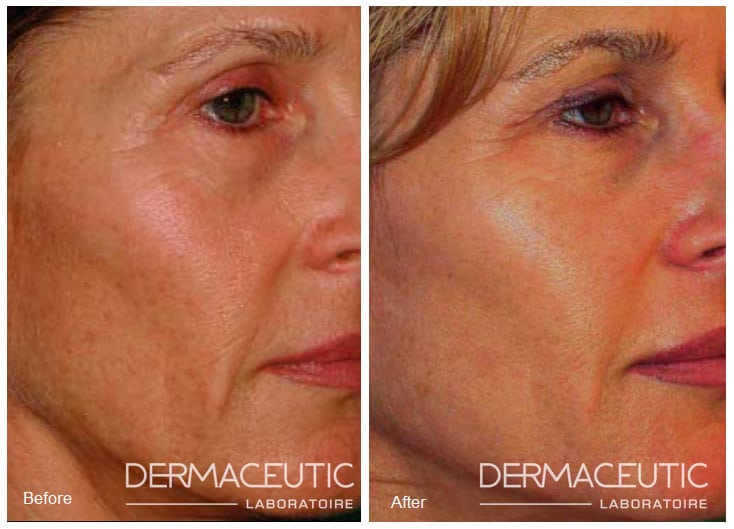 Dermaceutic | Cosmo Peel 12% - Before and After